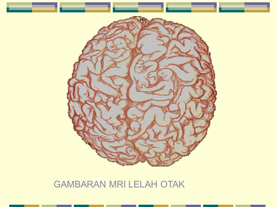GAMBARAN MRI LELAH OTAK