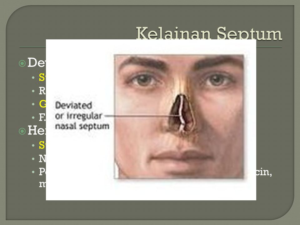  Deviasi Septum Sumbatan hidung, unilateral/bilateral Rasa nyeri di kepala, paraorbita Gg. Penciuman F. Predisposisi sinusitis  Hematoma Septum Sumb