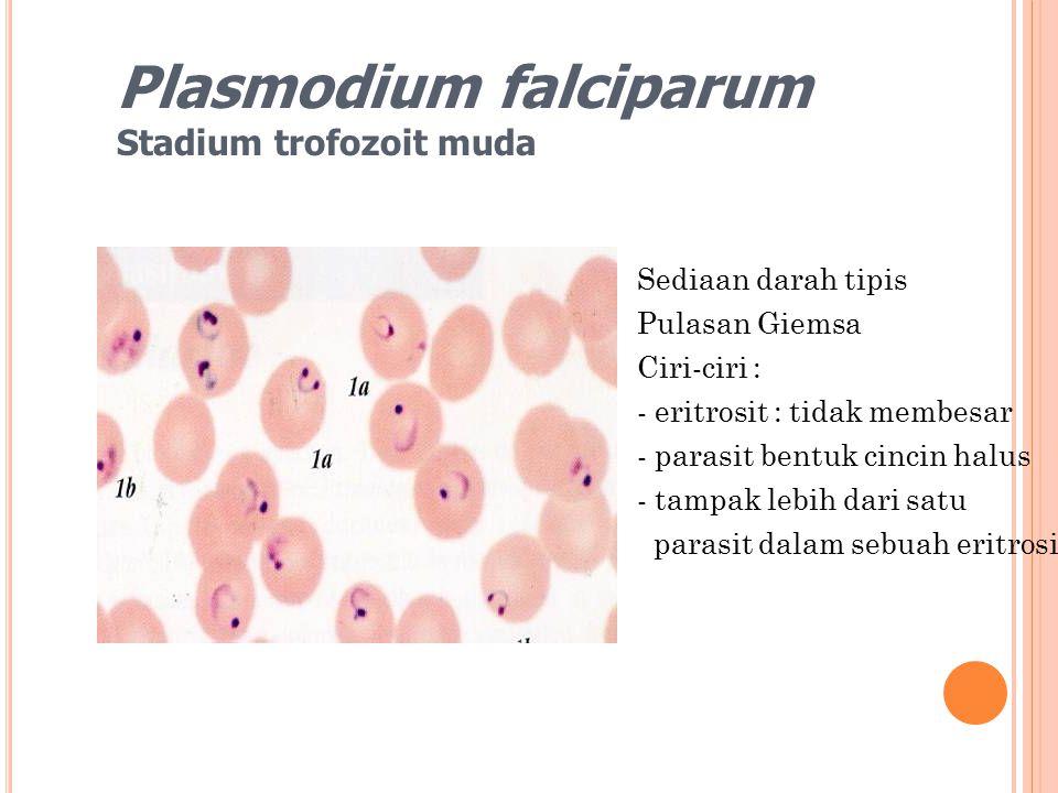 Sediaan darah tipis Pulasan Giemsa Ciri-ciri : - eritrosit : tidak membesar - parasit bentuk cincin halus - tampak lebih dari satu parasit dalam sebua
