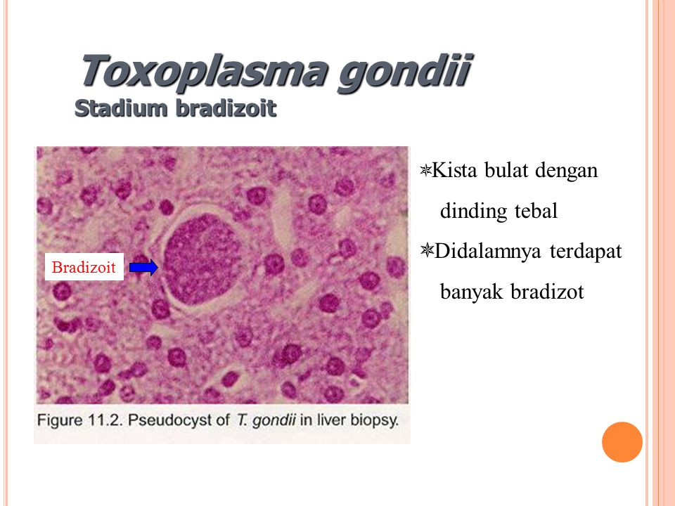 Bradizoit Toxoplasma gondii Stadium bradizoit  Kista bulat dengan dinding tebal  Didalamnya terdapat banyak bradizot