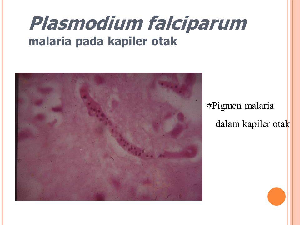 Plasmodium falciparum malaria pada kapiler otak  Pigmen malaria dalam kapiler otak