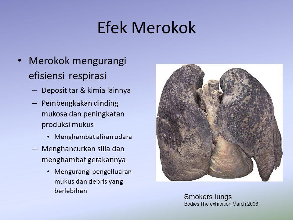 Efek Merokok Merokok mengurangi efisiensi respirasi – Deposit tar & kimia lainnya – Pembengkakan dinding mukosa dan peningkatan produksi mukus Mengham
