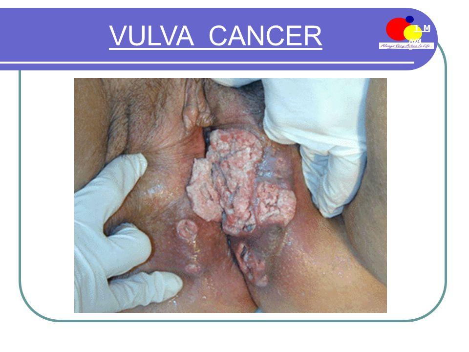 AVAI L T M EE-MDN VULVA CANCER