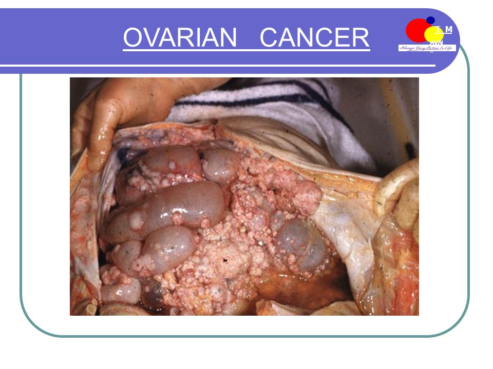 AVAI L T M EE-MDN OVARIAN CANCER