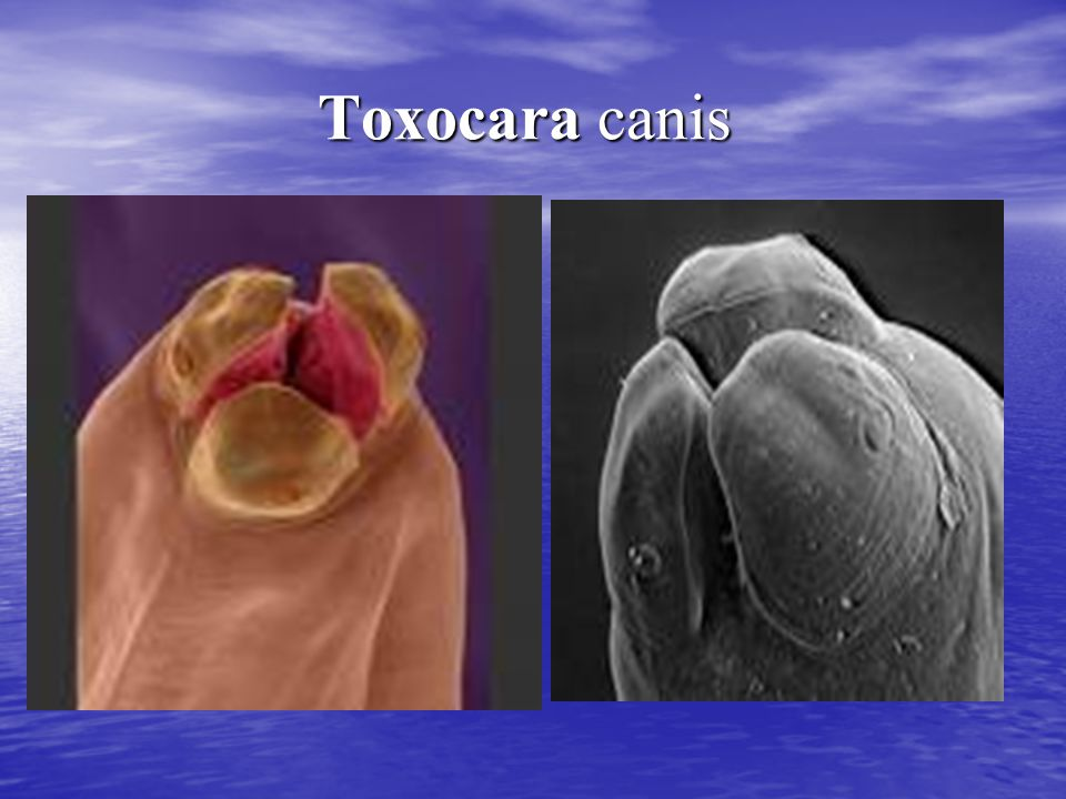Laboratory Diagnosis The suspicion of trichinellosis (trichinosis), based on clinical symptoms and eosinophilia, can be confirmed by specific diagnostic tests, including antibody detection, muscle biopsy, and microscopy.