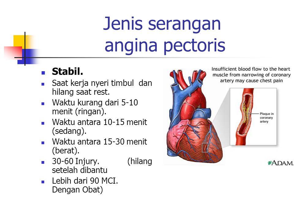 Jenis serangan angina pectoris Stabil. Saat kerja nyeri timbul dan hilang saat rest. Waktu kurang dari 5-10 menit (ringan). Waktu antara 10-15 menit (