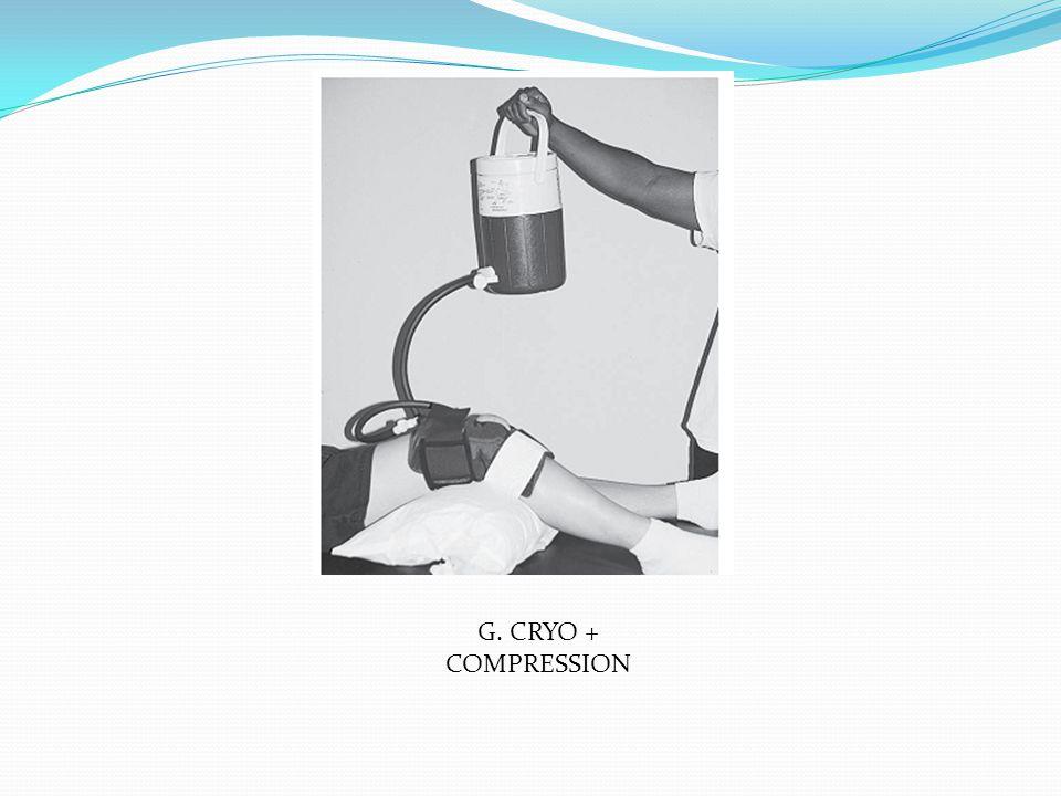 G. CRYO + COMPRESSION