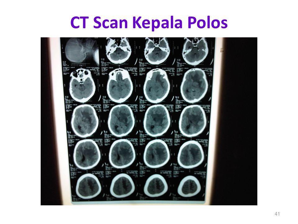 CT Scan Kepala Polos 41