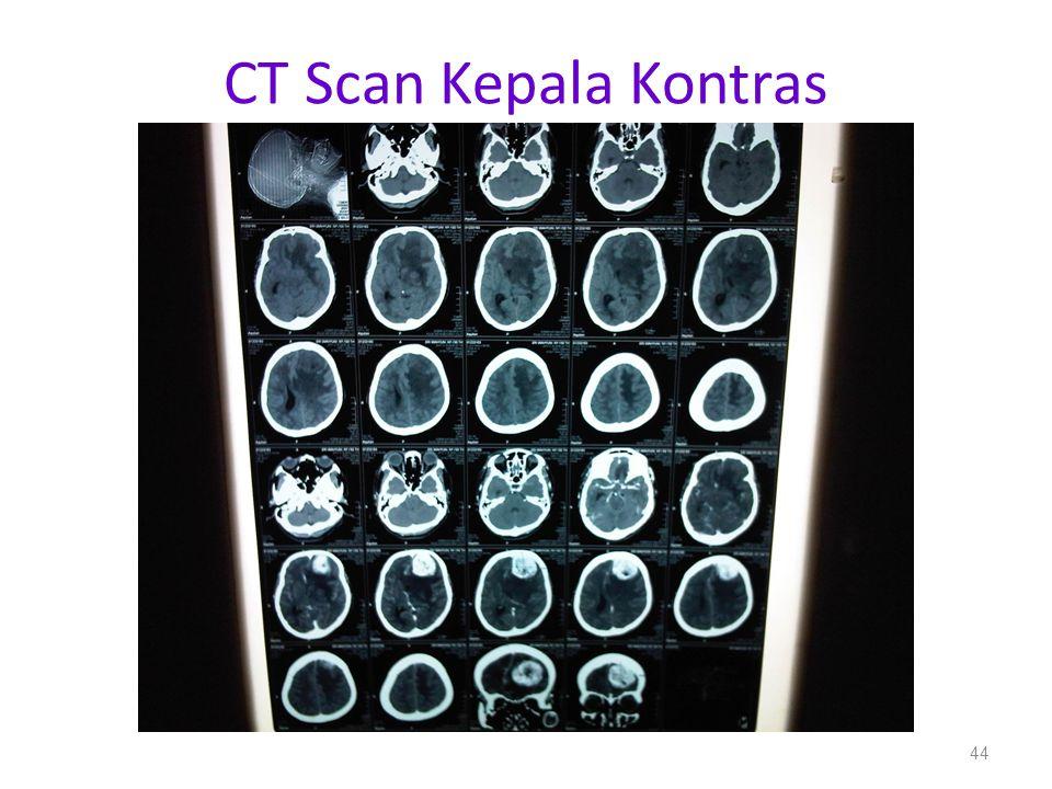 CT Scan Kepala Kontras 44