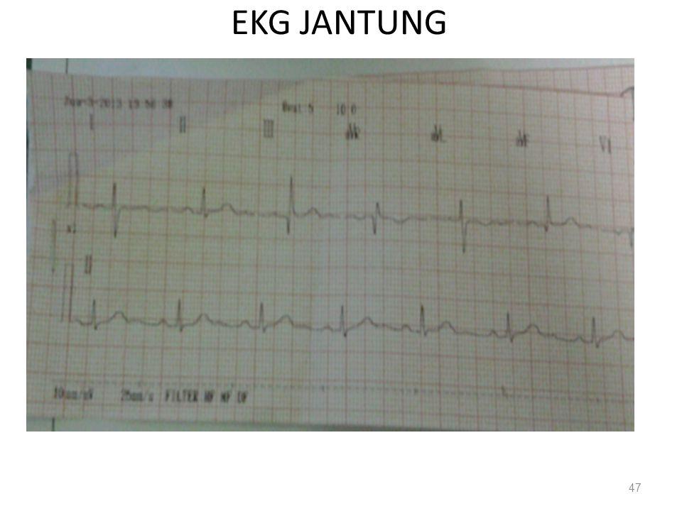 EKG JANTUNG 47