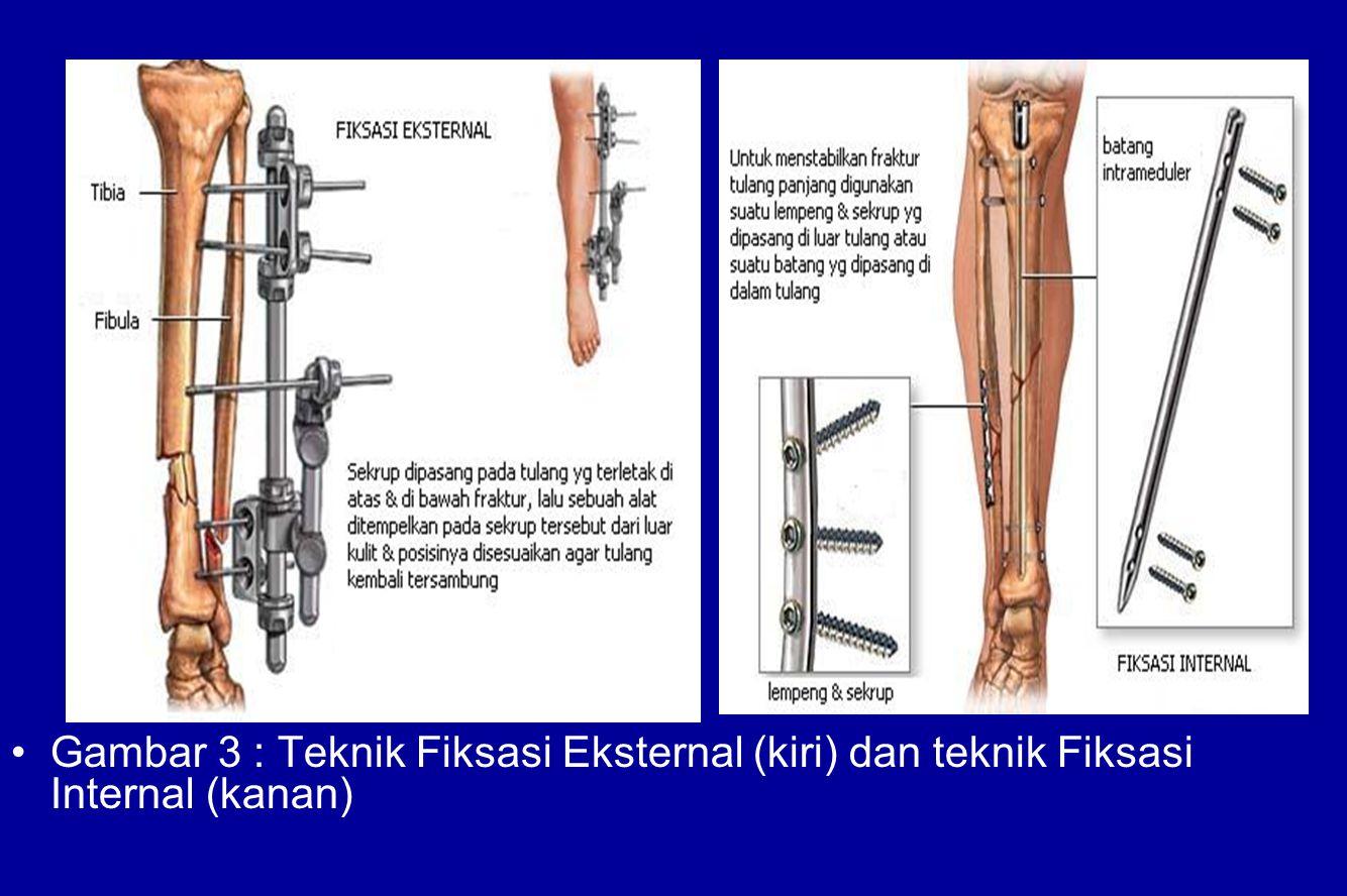 Gambar 3 : Teknik Fiksasi Eksternal (kiri) dan teknik Fiksasi Internal (kanan)