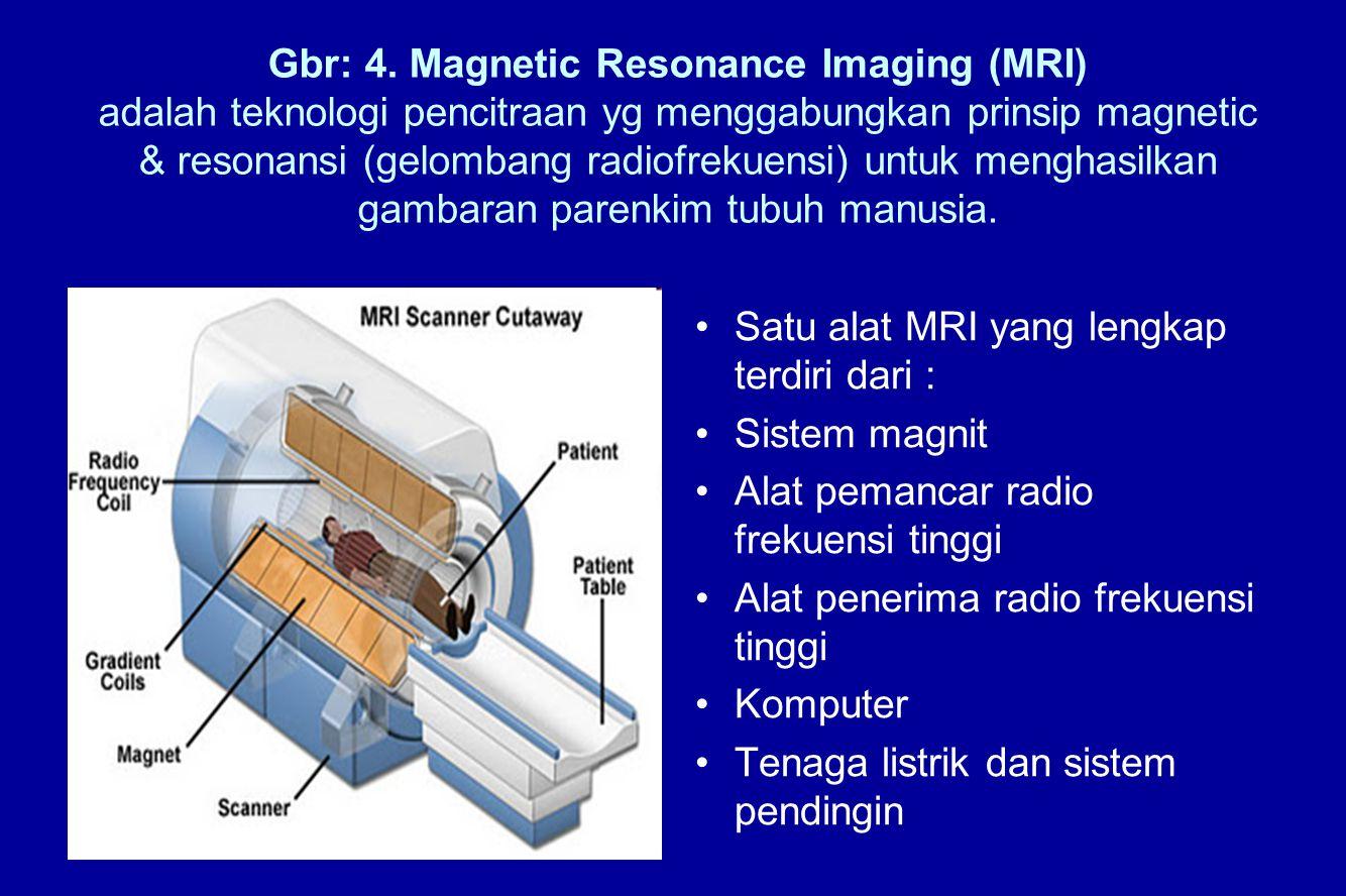 Gbr: 4. Magnetic Resonance Imaging (MRI) adalah teknologi pencitraan yg menggabungkan prinsip magnetic & resonansi (gelombang radiofrekuensi) untuk me