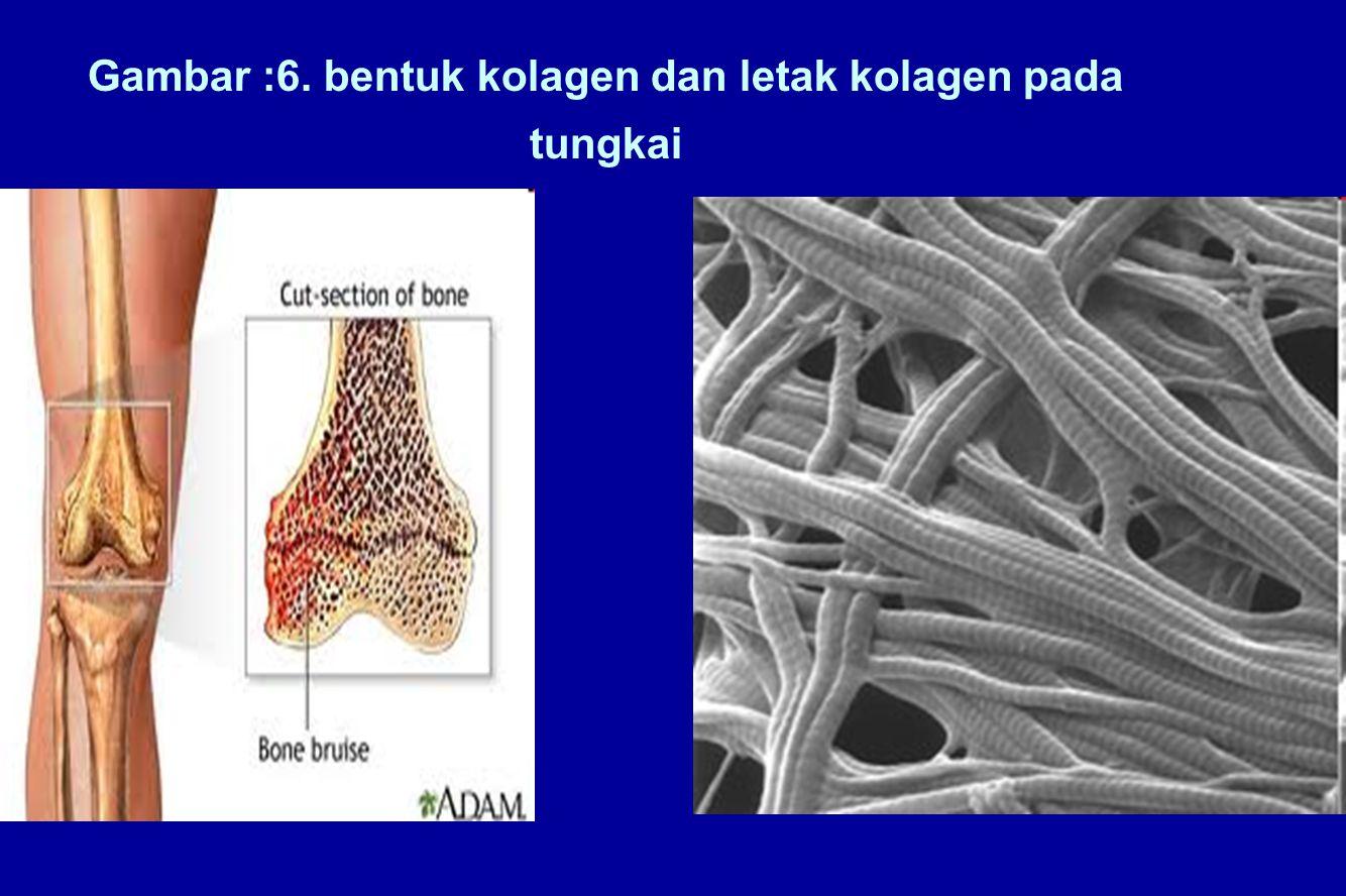 Gambar :6. bentuk kolagen dan letak kolagen pada tungkai