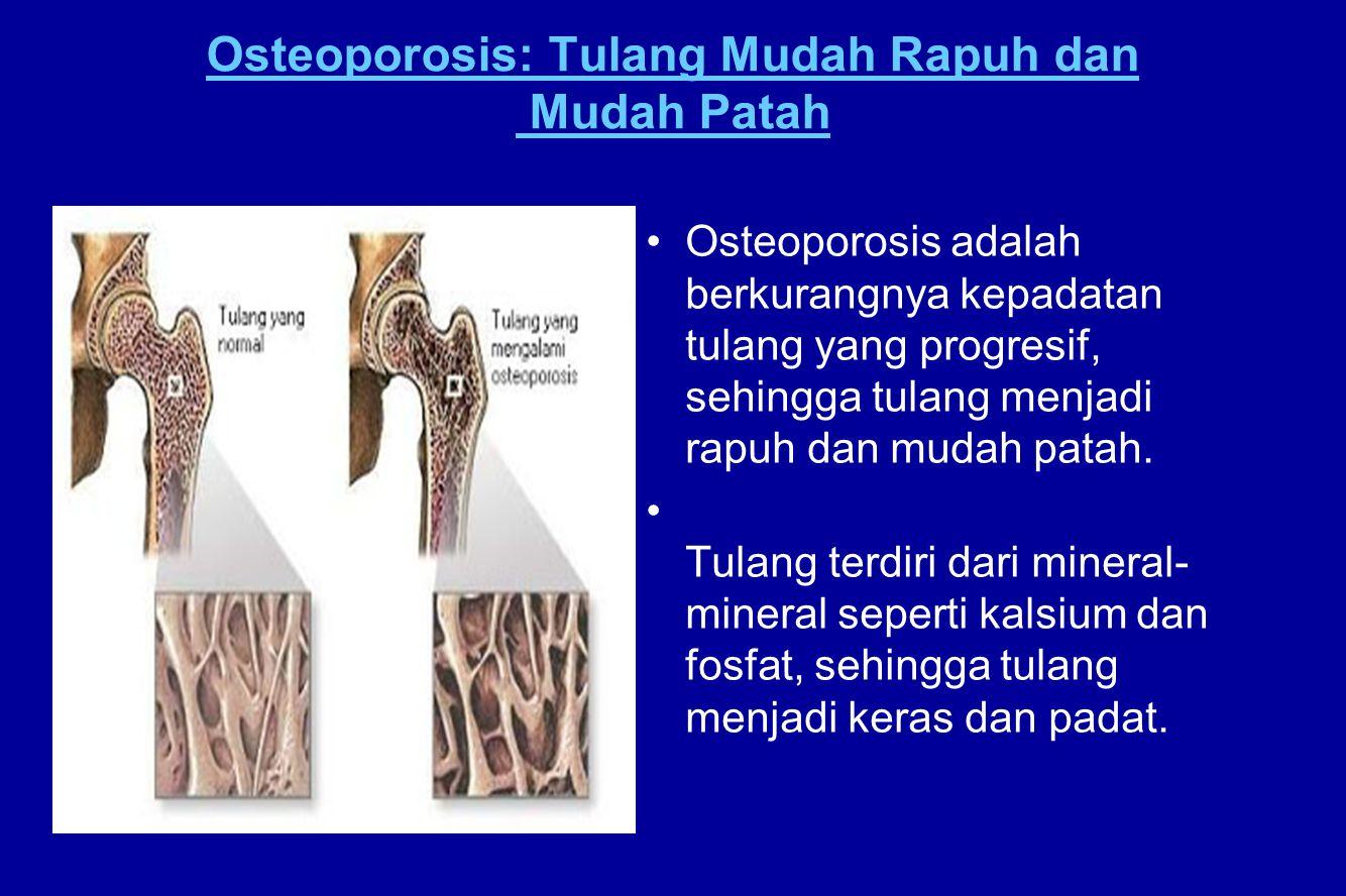 Osteoporosis: Tulang Mudah Rapuh dan Mudah Patah Osteoporosis adalah berkurangnya kepadatan tulang yang progresif, sehingga tulang menjadi rapuh dan m