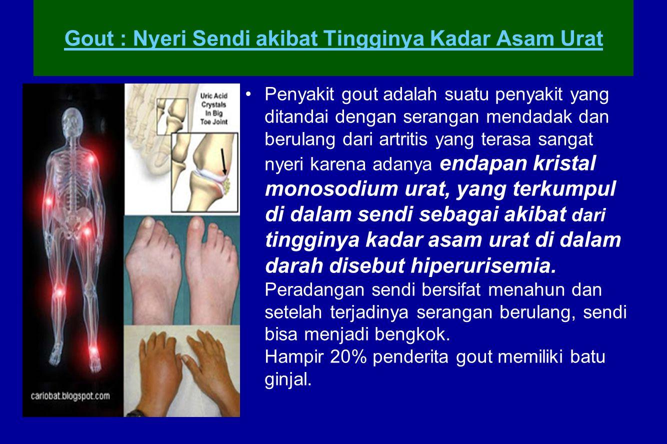 Gout : Nyeri Sendi akibat Tingginya Kadar Asam Urat Penyakit gout adalah suatu penyakit yang ditandai dengan serangan mendadak dan berulang dari artri