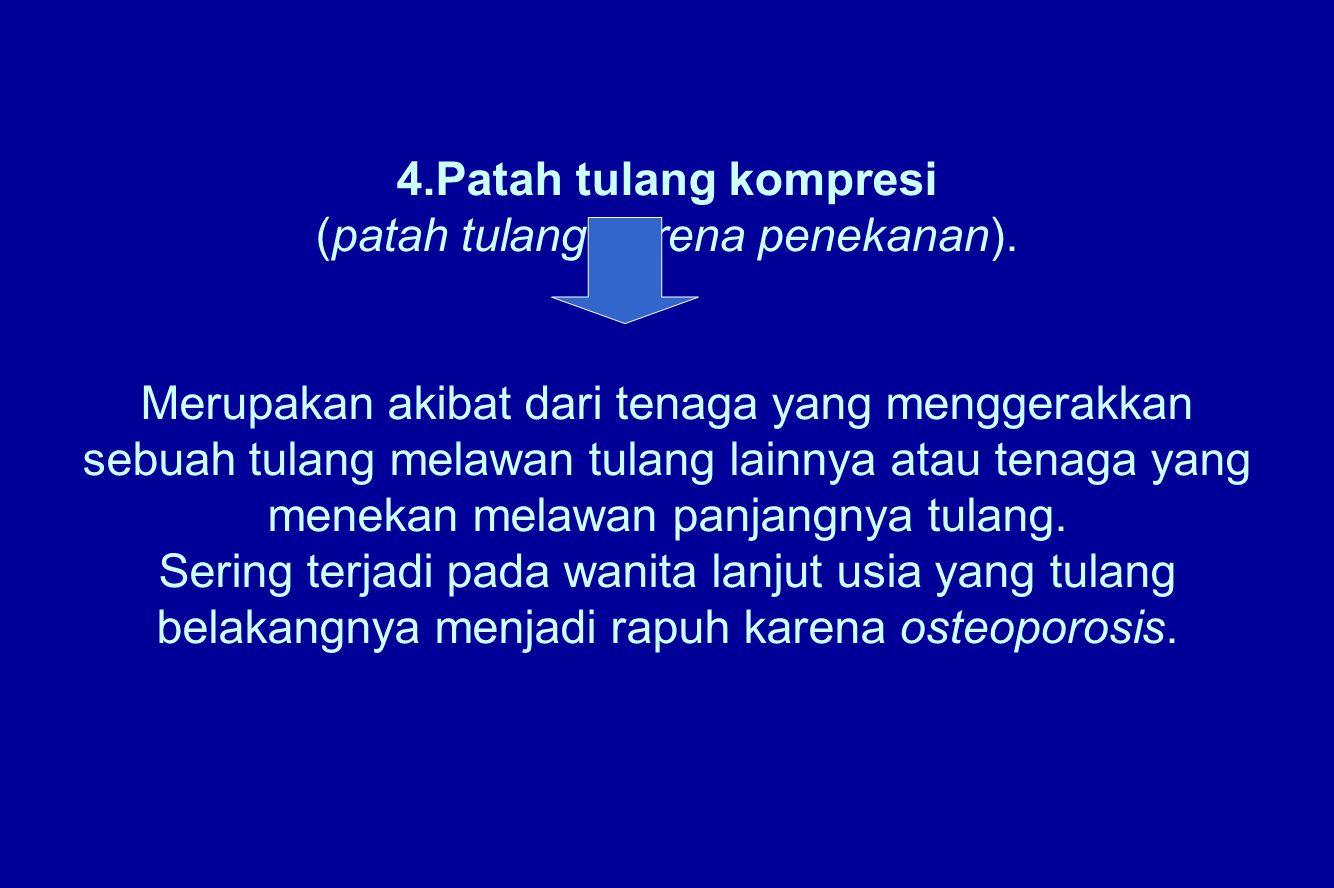 4.Patah tulang kompresi (patah tulang karena penekanan). Merupakan akibat dari tenaga yang menggerakkan sebuah tulang melawan tulang lainnya atau tena