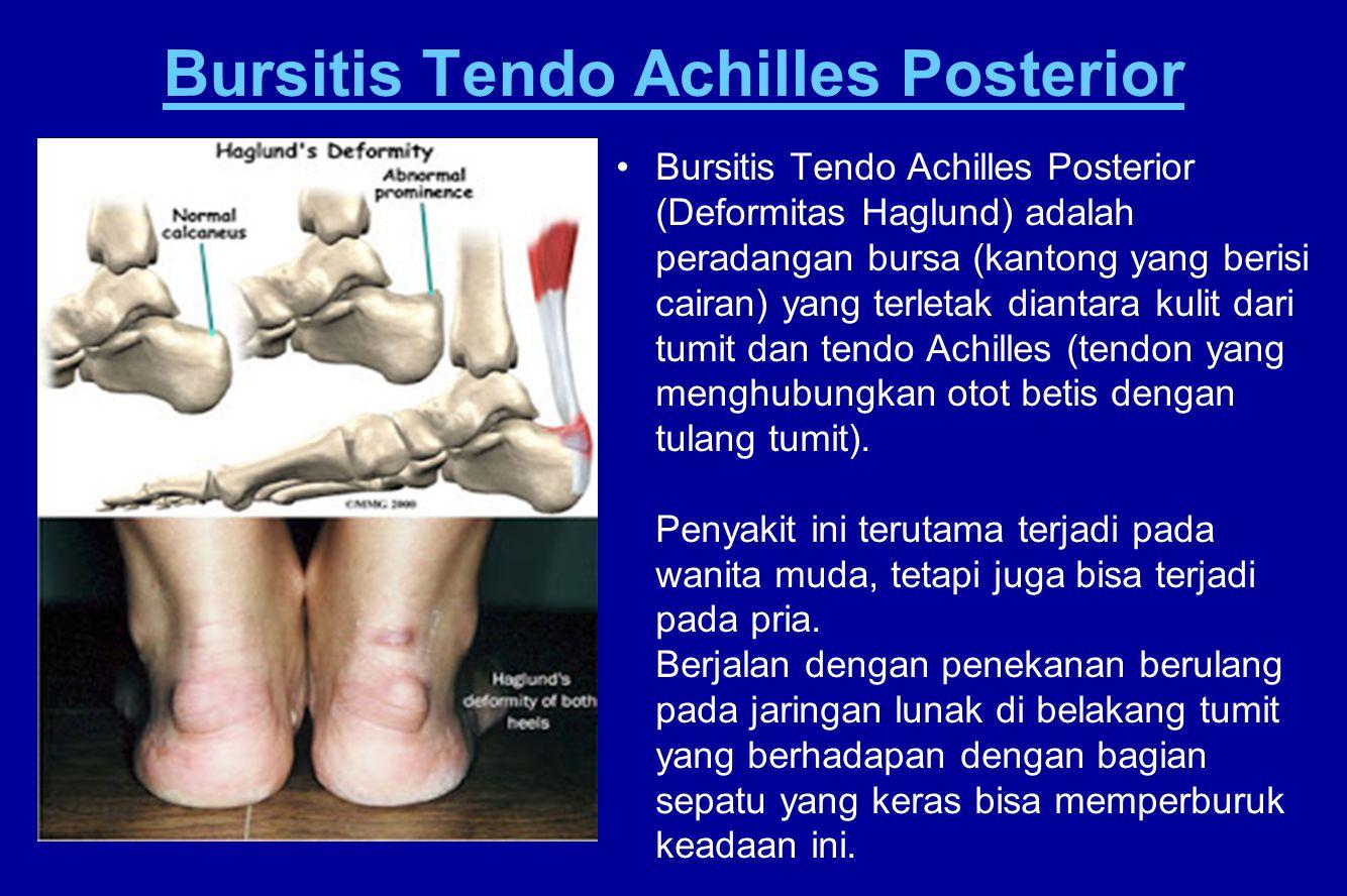 Bursitis Tendo Achilles Posterior Bursitis Tendo Achilles Posterior (Deformitas Haglund) adalah peradangan bursa (kantong yang berisi cairan) yang ter