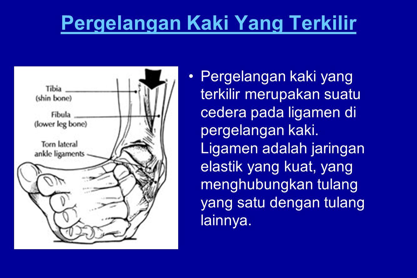 Pergelangan Kaki Yang Terkilir Pergelangan kaki yang terkilir merupakan suatu cedera pada ligamen di pergelangan kaki. Ligamen adalah jaringan elastik