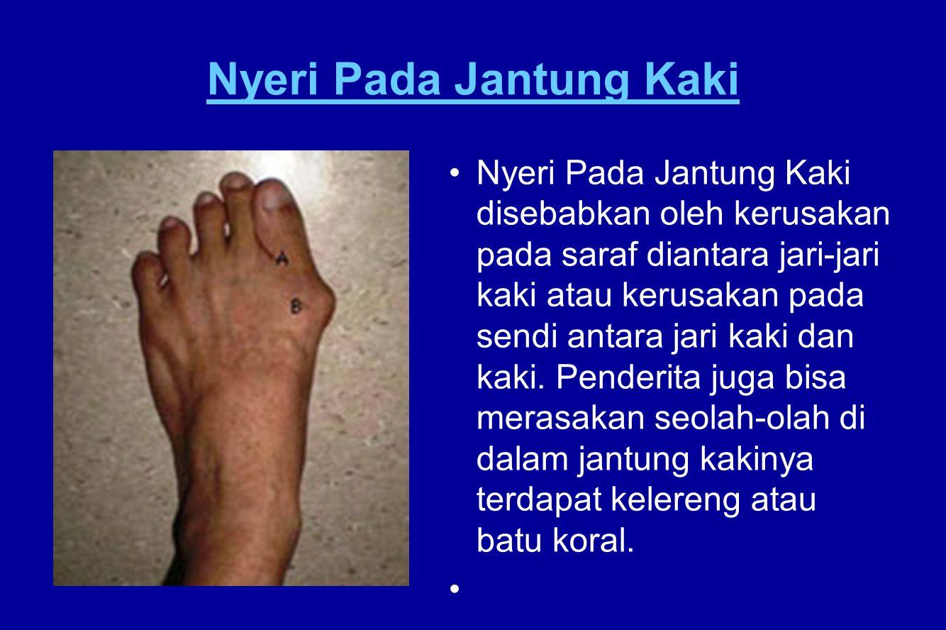 Nyeri Pada Jantung Kaki Nyeri Pada Jantung Kaki disebabkan oleh kerusakan pada saraf diantara jari-jari kaki atau kerusakan pada sendi antara jari kak