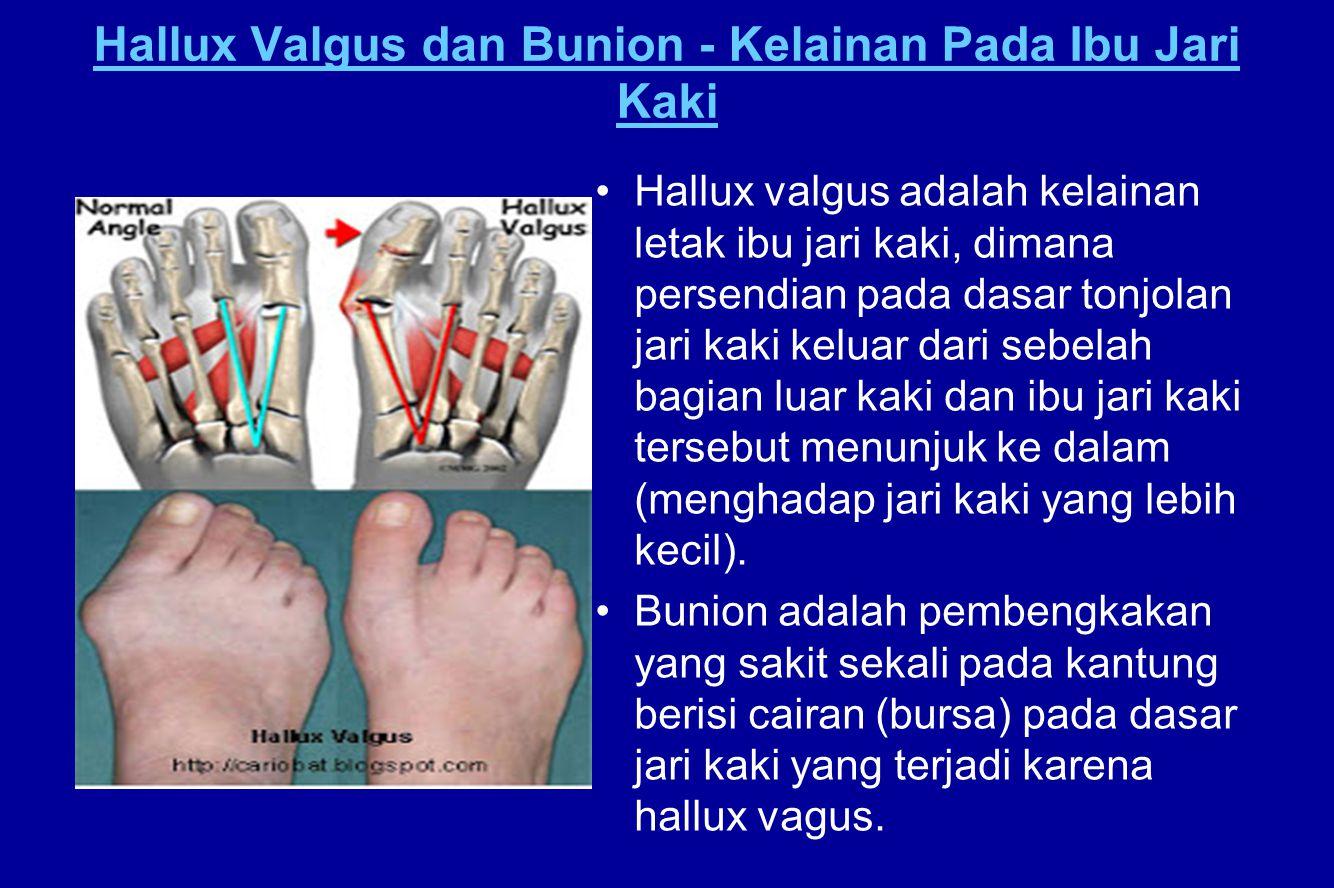 Hallux Valgus dan Bunion - Kelainan Pada Ibu Jari Kaki Hallux valgus adalah kelainan letak ibu jari kaki, dimana persendian pada dasar tonjolan jari k