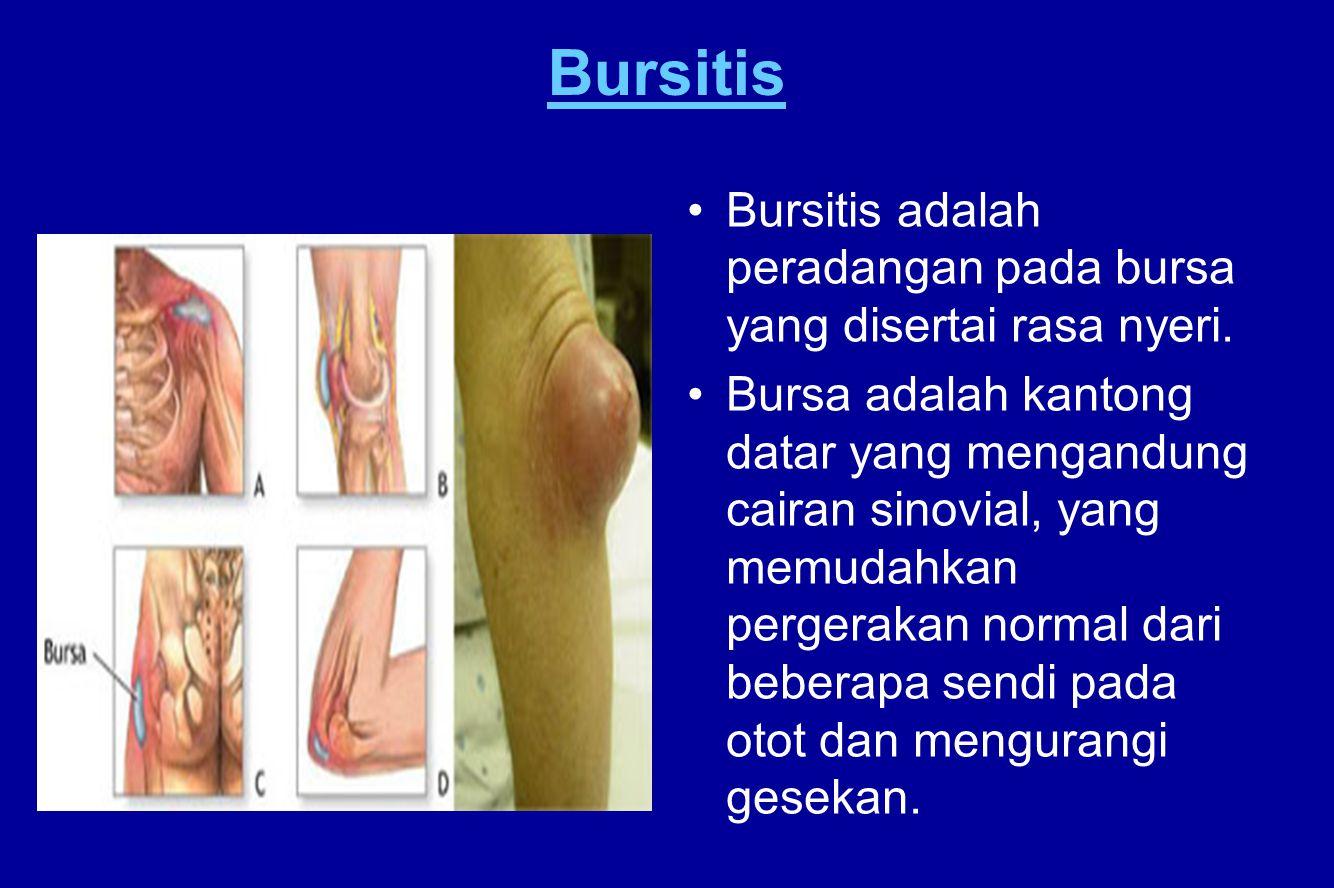 Bursitis Bursitis adalah peradangan pada bursa yang disertai rasa nyeri. Bursa adalah kantong datar yang mengandung cairan sinovial, yang memudahkan p