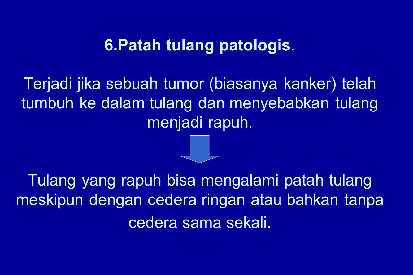 6.Patah tulang patologis. Terjadi jika sebuah tumor (biasanya kanker) telah tumbuh ke dalam tulang dan menyebabkan tulang menjadi rapuh. Tulang yang r