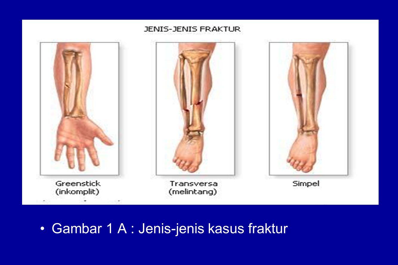 Gambar 1 A : Jenis-jenis kasus fraktur