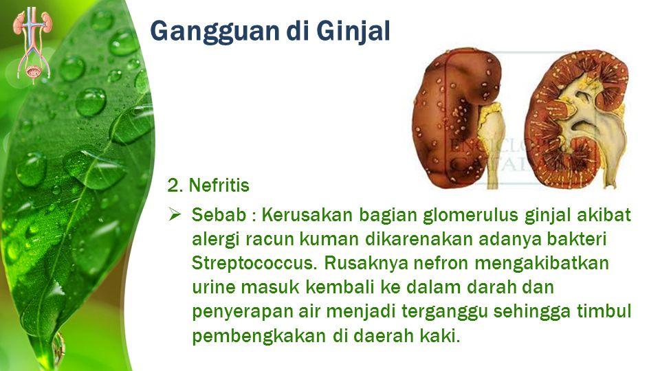 2. Nefritis  Sebab : Kerusakan bagian glomerulus ginjal akibat alergi racun kuman dikarenakan adanya bakteri Streptococcus. Rusaknya nefron mengakiba
