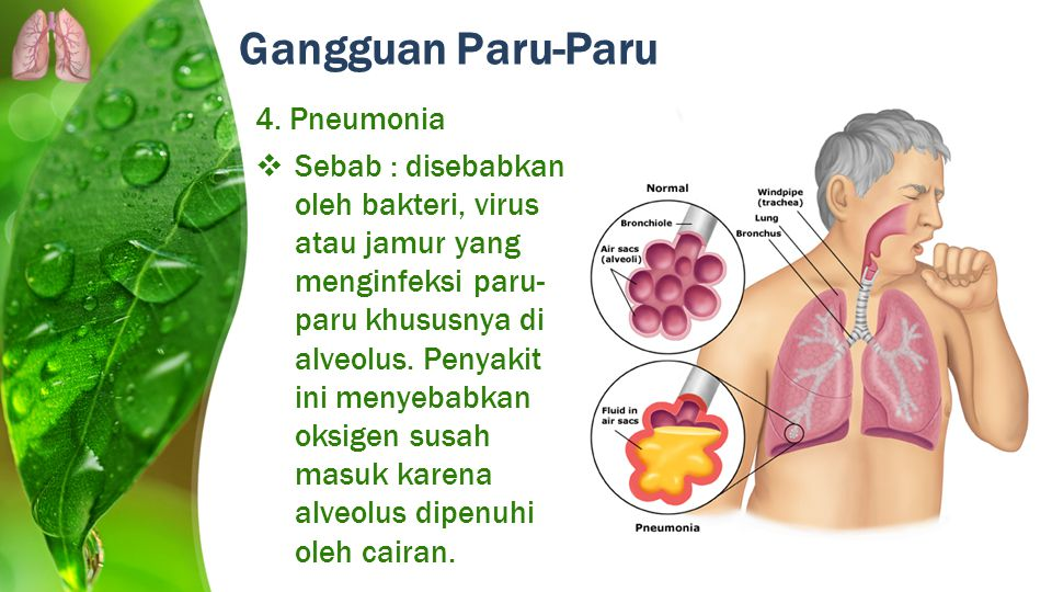Gangguan Paru-Paru 4. Pneumonia  Sebab : disebabkan oleh bakteri, virus atau jamur yang menginfeksi paru- paru khususnya di alveolus. Penyakit ini me