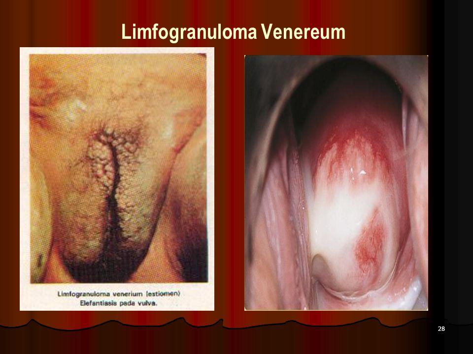 28 Limfogranuloma Venereum