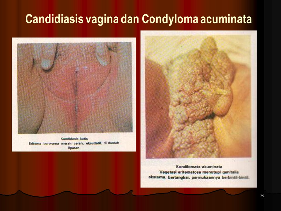 29 Candidiasis vagina dan Condyloma acuminata