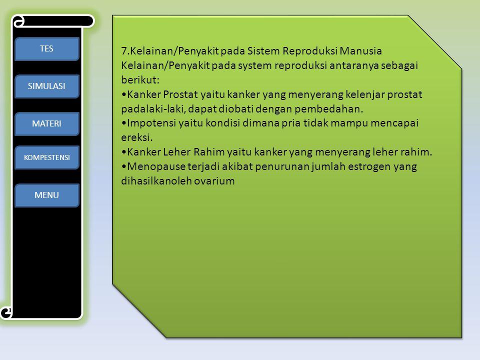 TES SIMULASI MATERI KOMPESTENSI MENU 7.Kelainan/Penyakit pada Sistem Reproduksi Manusia Kelainan/Penyakit pada system reproduksi antaranya sebagai ber