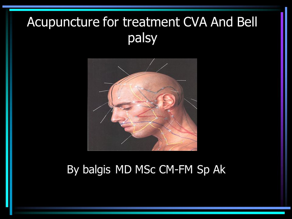 RESULTS: (1) Acupuncture was effective for the Bell s palsy in active stage, resting stage and recovery stage (all P 0.