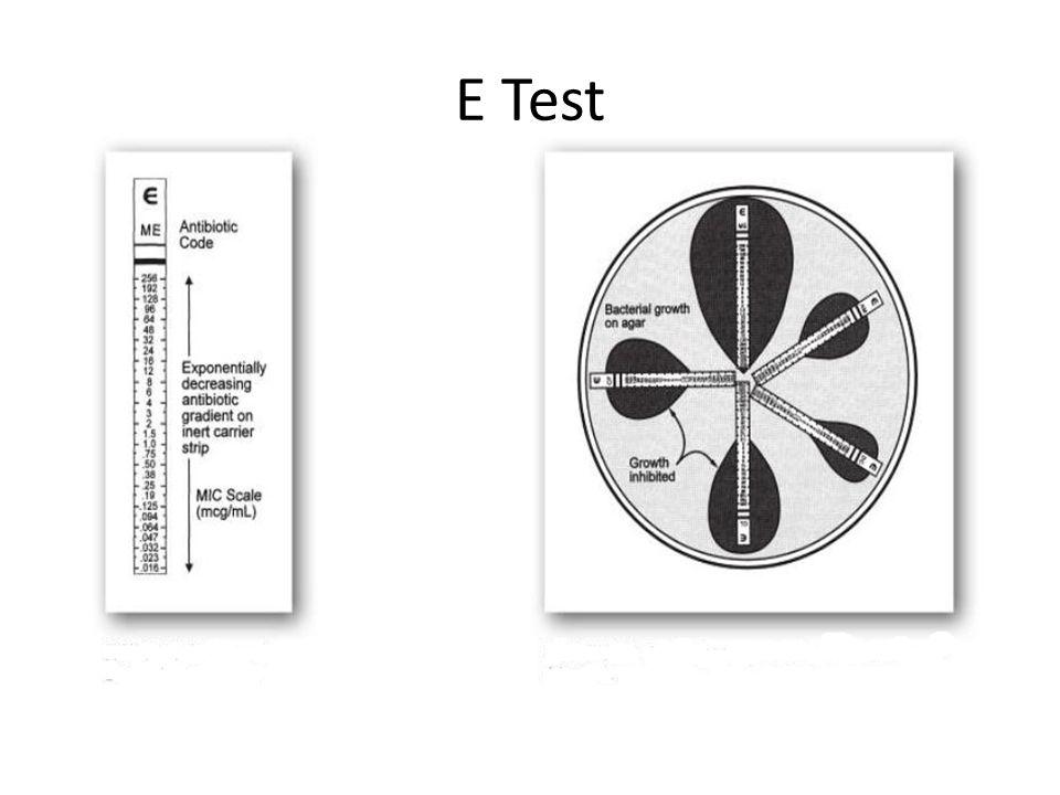 E Test