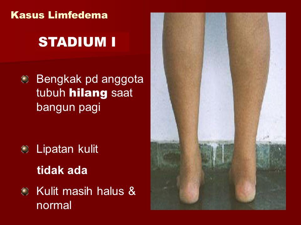 Kasus Limfedema Bengkak pd anggota tubuh hilang saat bangun pagi Lipatan kulit tidak ada Kulit masih halus & normal STADIUM I