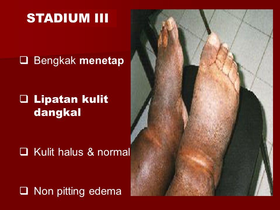  Bengkak menetap  Lipatan kulit dangkal  Kulit halus & normal  Non pitting edema STADIUM III