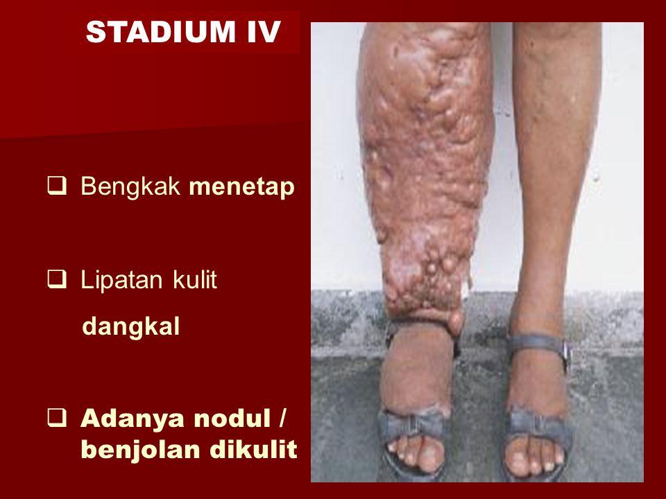  Bengkak menetap  Lipatan kulit dangkal  Adanya nodul / benjolan dikulit STADIUM IV