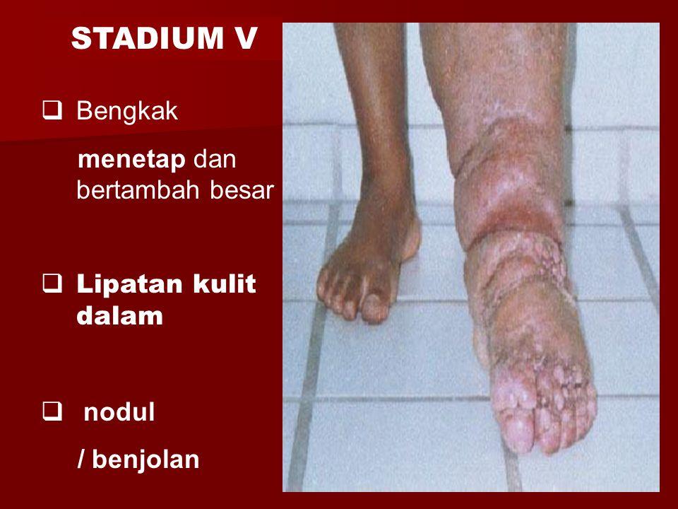  Bengkak menetap dan bertambah besar  Lipatan kulit dalam  nodul / benjolan STADIUM V