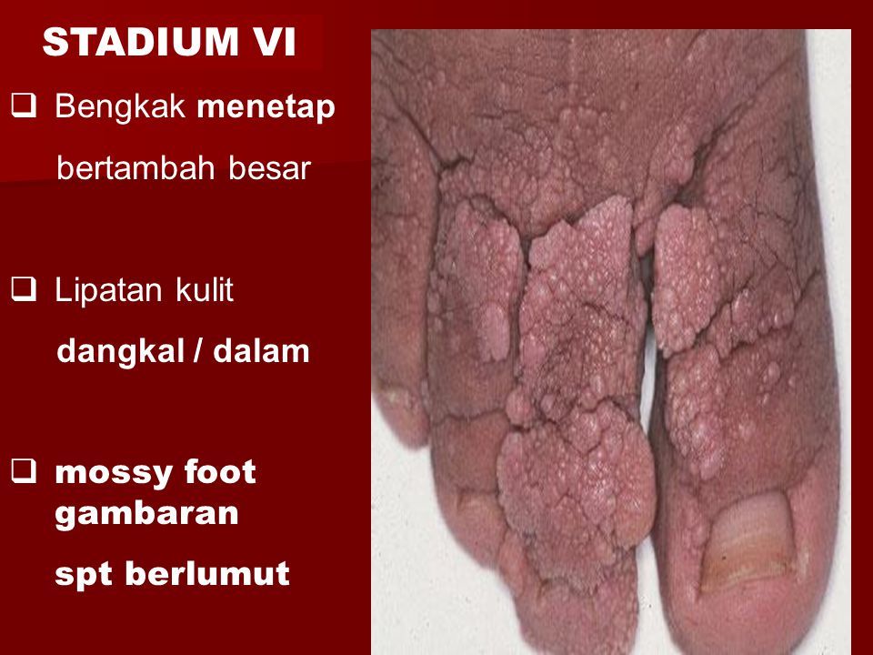  Bengkak menetap bertambah besar  Lipatan kulit dangkal / dalam  mossy foot gambaran spt berlumut STADIUM VI