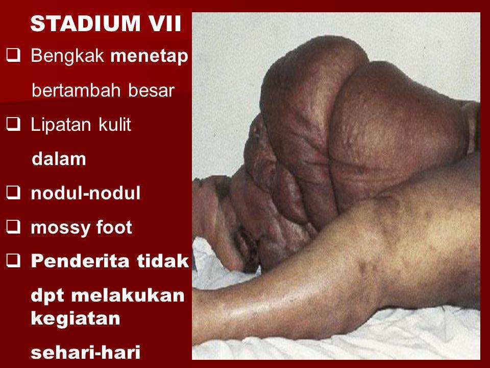  Bengkak menetap bertambah besar  Lipatan kulit dalam  nodul-nodul  mossy foot  Penderita tidak dpt melakukan kegiatan sehari-hari STADIUM VII