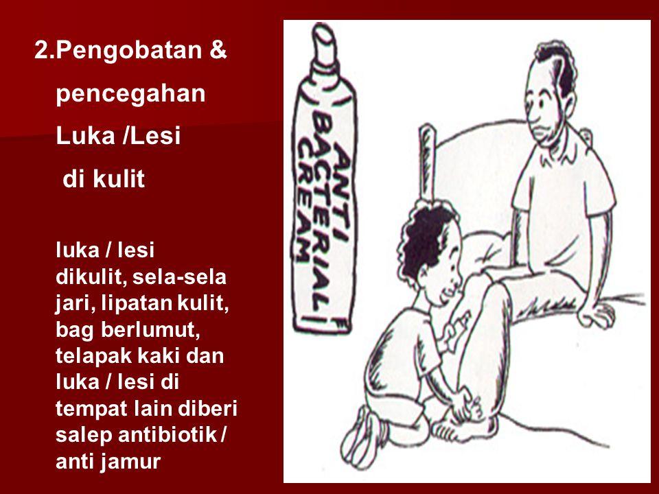 luka / lesi dikulit, sela-sela jari, lipatan kulit, bag berlumut, telapak kaki dan luka / lesi di tempat lain diberi salep antibiotik / anti jamur 2.P