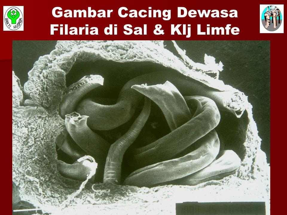 Gambar Cacing Dewasa Filaria di Sal & Klj Limfe