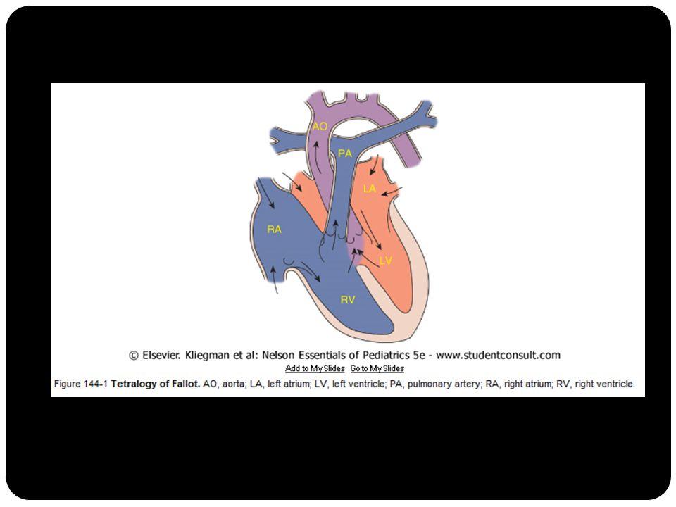 Alfred Blalock : shunt dari sistemik ke arteri pulmonal 1945 operasi 2 tahap 1950- 1960an operasi definitif dini tahun pertama kehidupan (< 1 tahun).
