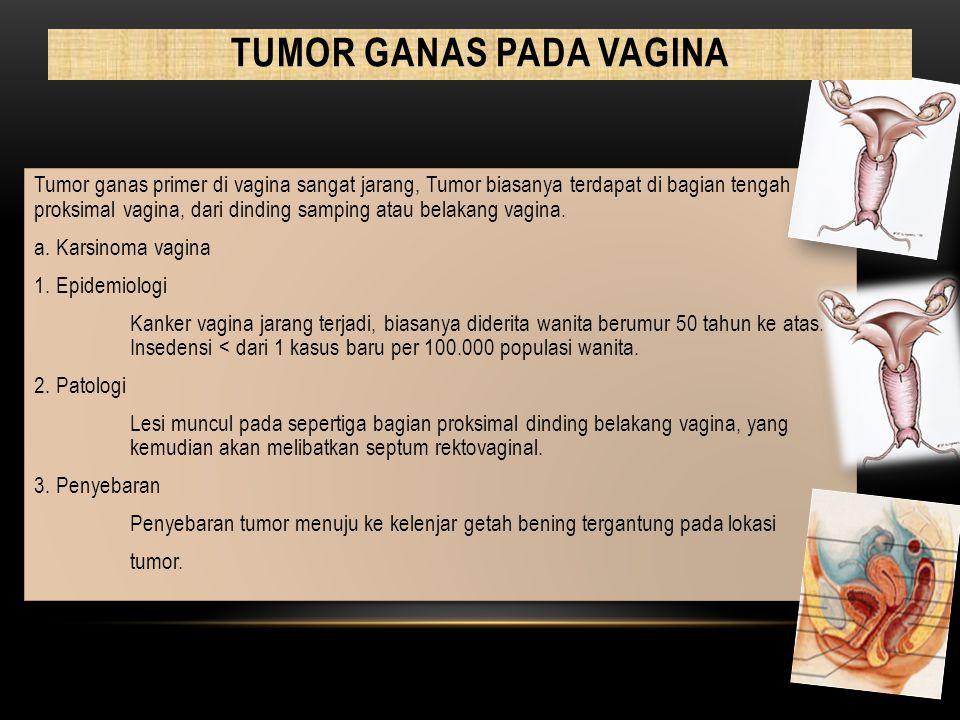 Tumor ganas primer di vagina sangat jarang, Tumor biasanya terdapat di bagian tengah proksimal vagina, dari dinding samping atau belakang vagina. a. K