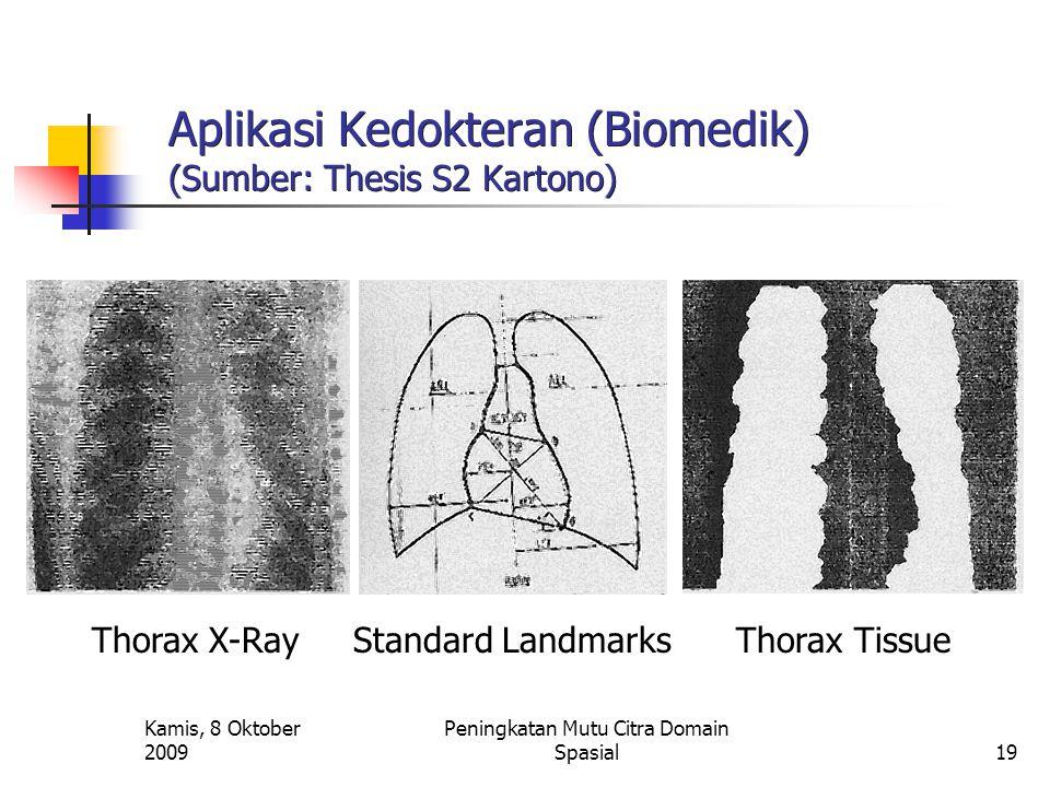 Kamis, 8 Oktober 2009 Peningkatan Mutu Citra Domain Spasial19 Aplikasi Kedokteran (Biomedik) (Sumber: Thesis S2 Kartono) Thorax X-Ray Standard Landmar