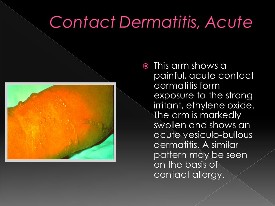  This arm shows a painful, acute contact dermatitis form exposure to the strong irritant, ethylene oxide.