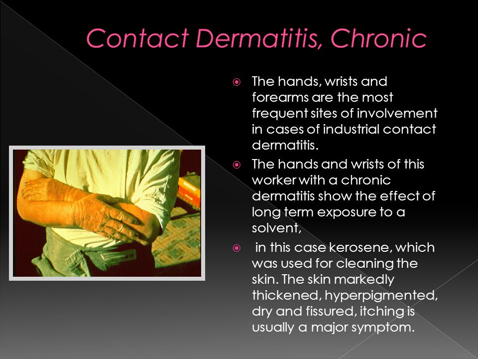  The hands, wrists and forearms are the most frequent sites of involvement in cases of industrial contact dermatitis.