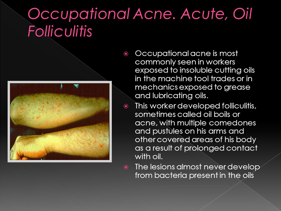  Occupational acne is most commonly seen in workers exposed to insoluble cutting oils in the machine tool trades or in mechanics exposed to grease and lubricating oils.