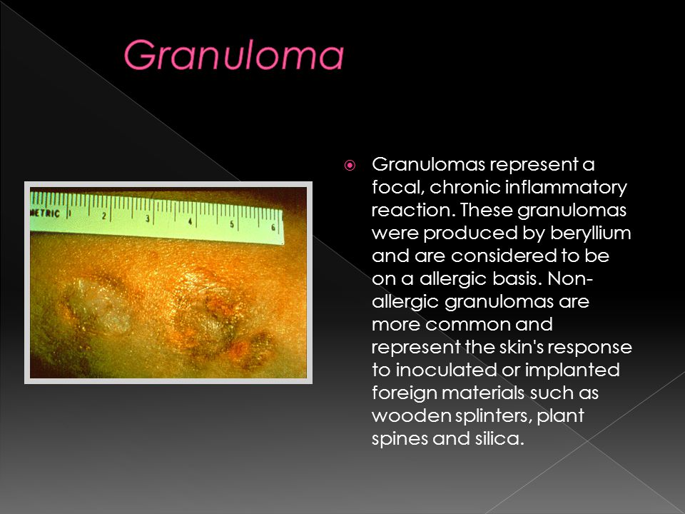  Granulomas represent a focal, chronic inflammatory reaction.