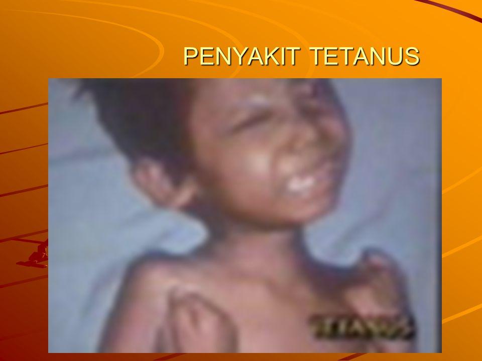 PENYAKIT TETANUS